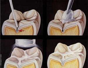 Dental Sealants Diagram